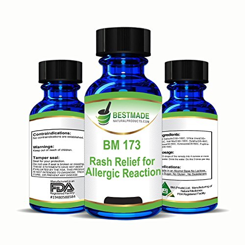 Rash Relief For Allergic Reaction  Urticaria  Natural Remedy  Bm173