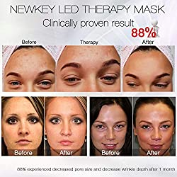 Led Face Mask, NEWKEY Led Light Therapy 7 Color Facial Skin Care Mask - with Clinically Proven Blue & Red Light Treatment Acne Photon Mask - Korea PDT Technology for Acne Reduction/Skin Rejuvenation