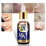 SHILLS Mandelic Acid Face Serum- Anti Acne & Scar Face Serum. With Vitamin E For Skin Care - Remove Blackheads, Brightening Facial Essence 30ml