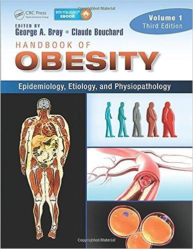 Ebook for joomla téléchargement gratuitHandbook of Obesity -- Volume 1: Epidemiology, Etiology, and Physiopathology, Third Edition (Littérature Française) PDF ePub MOBI
