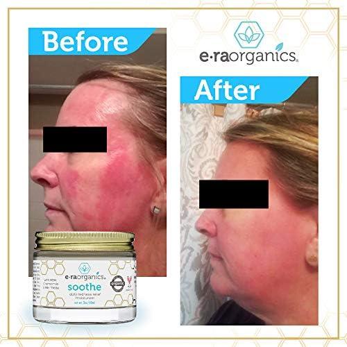 Rosacea Redness Relief Treatment Cream - Soothe Anti Inflammatory Natural Face Moisturizer for Rosacea, Eczema, Acne, Dry, Sensitive Skin Care Milk Thistle, MSM, Avocado Oil & Chamomile Era-Organics 4