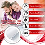 Skin Tag and Acne Remover Patches (72 Pcs) Natrual