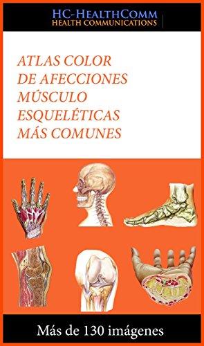 Descargar Libro Atlas Color De Afecciones Músculo Esqueléticas Más Comunes: Más De 130 Imágenes Hc-healthcomm