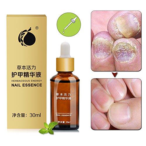 Best Nail Treatments