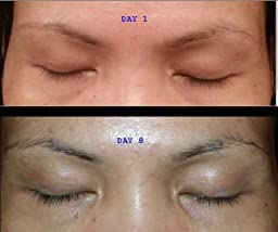 Eyelash Growth Serum for Long Eyelashes 1