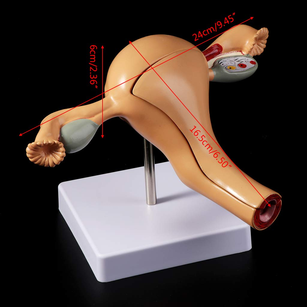 Vegan Human Pathological Uterus Ovary Model Anatomical Anatomy Disease Pathology Medical Lesion Teaching Display Tool