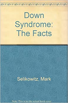 Down Syndrome: The Facts