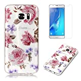 For Samsung Galaxy S7 Case with Screen Protector,OYIME Glitter Slim Fit Clear Silicone TPU Anti-Scratch Drop Proof Resistant Rubber Protective Back Cover (Rose)