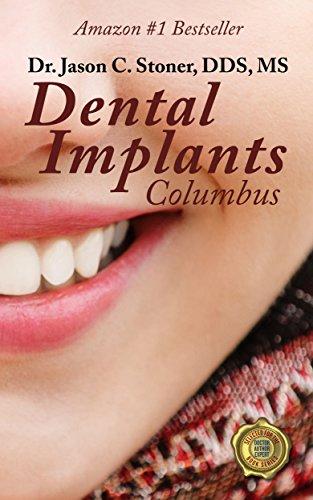 Download Dental Implants Columbus Pdf