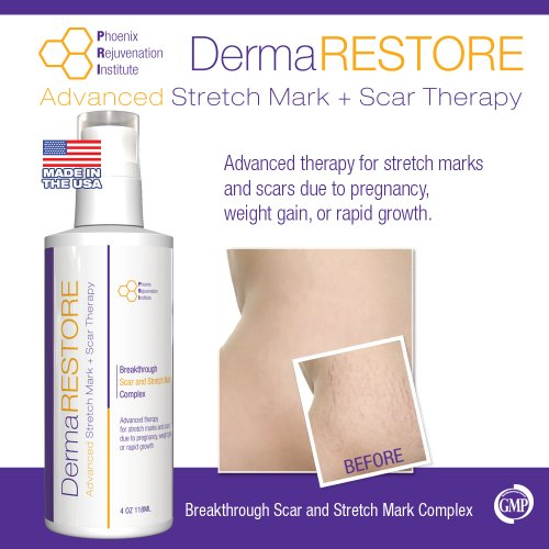 PRI Dermarestore - The #1 Clinically Proven Stretch Mark and Scar Treatment - 4oz Cream