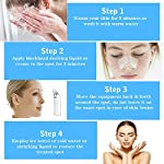 Micup Blackhead Remover Vacuum Machine Electric Facial Pore Cleaner Acne Comedo Suction Microdermabrasion Exfoliating Extractor USB Rechargeable Skin Care Machine (White)