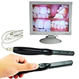 Scenstar Intraoral Dental Camera