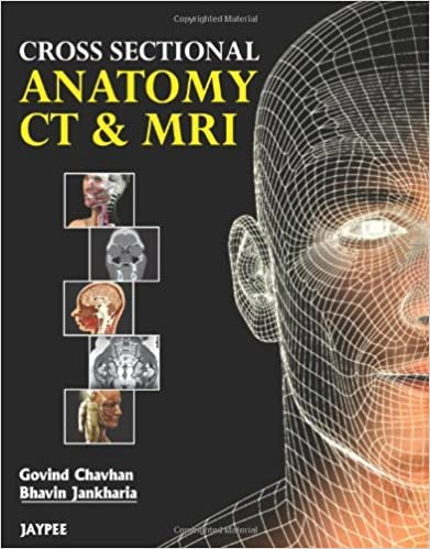 Cross Sectional Anatomy CT & MRI: 8601415720037: Medicine & Health ...