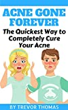 Acne Gone Forever: The Quickest Way to Completely Cure Your Acne (how to get rid of acne, cure acne, acne treatment, acne treatments, acne remedies, clear skin diet, adult acne, pimples, remedies)