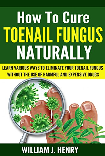 How to Cure Toenail Fungus Naturally by [Henry, William J.]