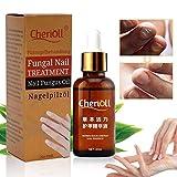 Nail anti fungal treatment extra strength toenail fungus athletes foot fungi nail by superjune