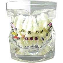 Dental Malocclusion Orthodontic Treatment Teeth Model with Metal Brackets Wires Colorful Ties Chains and Hoops M3005