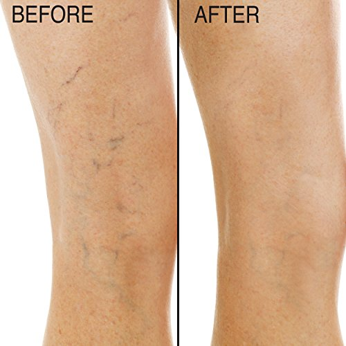 coconut oil and spider veins