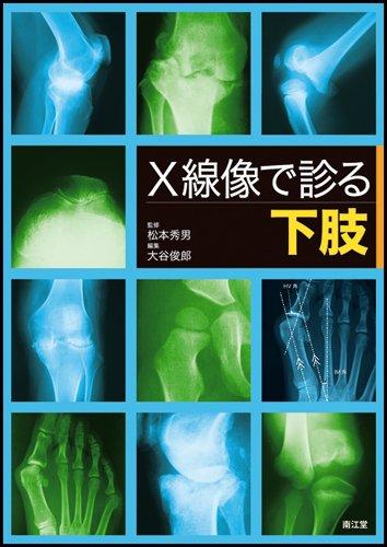 X線像で診る下肢