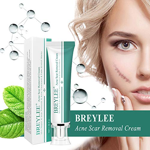 Natural Scar Removal Cream for New and Old Scars, Acne Treatment Cream Effective in Acne Spots, Stretch Marks, C-Section, Burn, Keloid and Surgical Scars-Gentle Herbal Extracts formula(30Ml) (30ml) from Huryfox