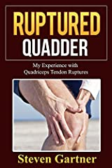 This is my personal story about my experience with suffering two instances of a very serious leg injury know as Bilateral Quadriceps Tendon Rupture or Tear.In 2007 I fully ruptured my right quadriceps tendon from a jet skiing accident. Fast f...