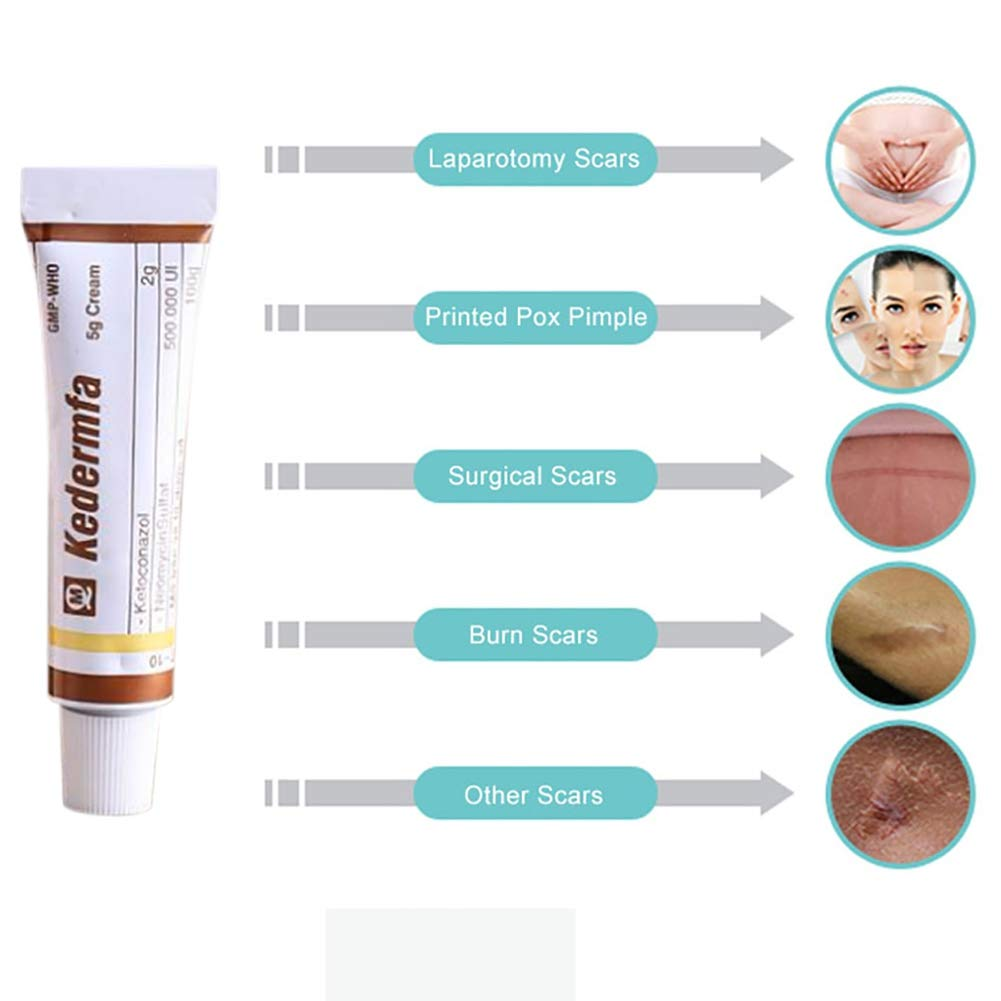 Vietnam Scar Removal Cream Acne & Spots Treatment Anti-Itch Burn, Scald Scar Removal Ointment by RedDhong (Image #5)