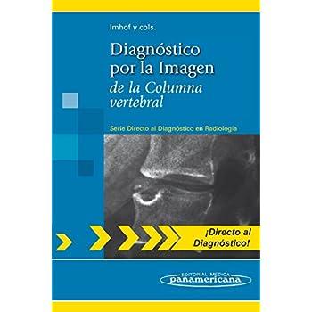 Diagnóstico por la Imagen: de la Columna vertebral (Directo al diagnostico en radiologia / Direct Diagnosis in Radiology)