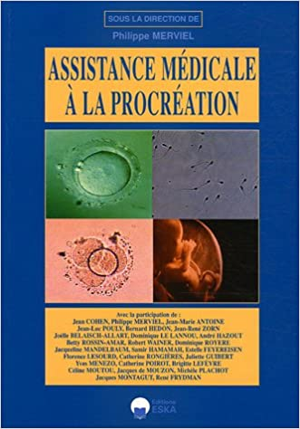 Amazon Fr Assistance Medicale A La Procreation Merviel Philippe Cohen Jean Zorn Jean Rene Antoine Jean Marie Collectif Livres