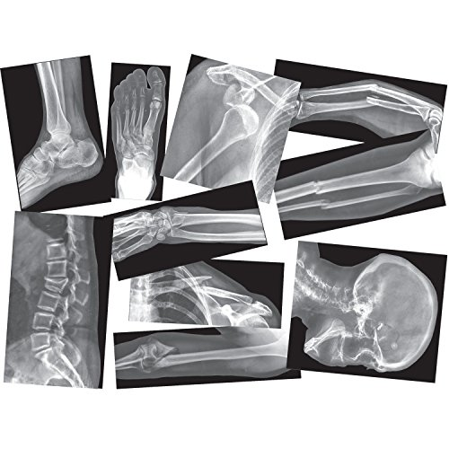 Roylco Broken Bones X-Ray Set