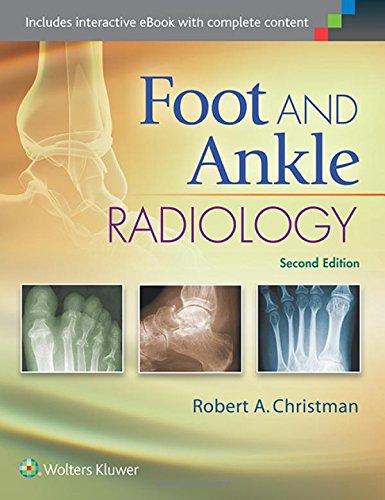 Foot and Ankle Radiology by LWW