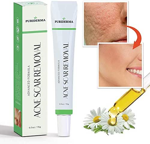 Acne Scar Removal Cream Treatment for Face, Remove & Lighten Old & New Scars, Spots & Marks, Natural, Gentle & Effective Herbal Extracts Formula - by PuriDerma (15 ml)