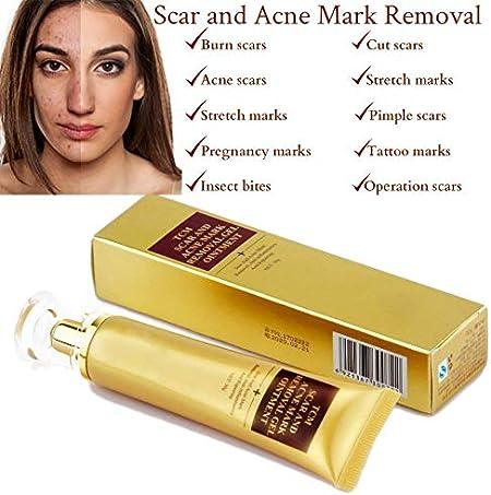 SkinRosa Crema para eliminar eficazmente el acné y las cicatrices como quemaduras, cortes, marcas de estiramiento de embarazo, manchas de acné, ...