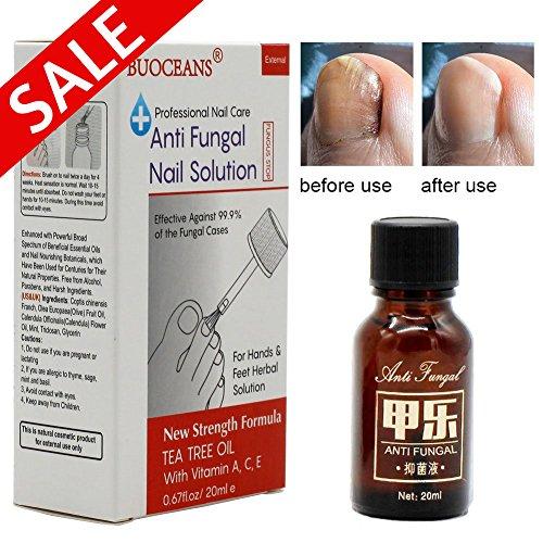 Foot Nail Fungus Natural Treatment