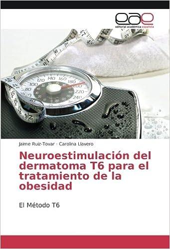 Neuroestimulación del dermatoma T6 para el tratamiento de la ...