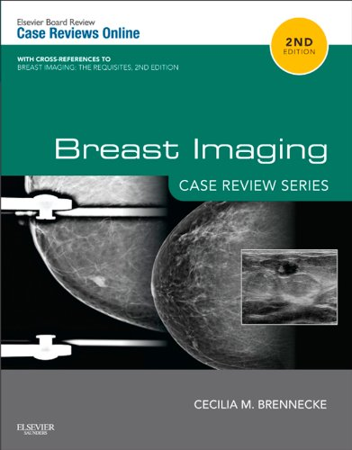 Breast Imaging: Case Review Series E-Book