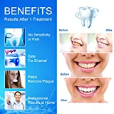 Teeth Whitening, Teeth Whitener, Bright Teeth