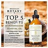 Frankincense-Essential-Oil-Alpha-Thujene-70-Brooklyn-Botany-Therapeutic-Grade-100-Pure-1-fl-oz