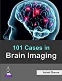 101 Cases in Brain Imaging, Sharma, Ashok, 9351525716