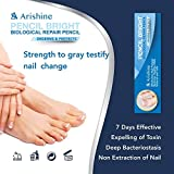 Arishine Toenail Fungus Treatment, Fungus
