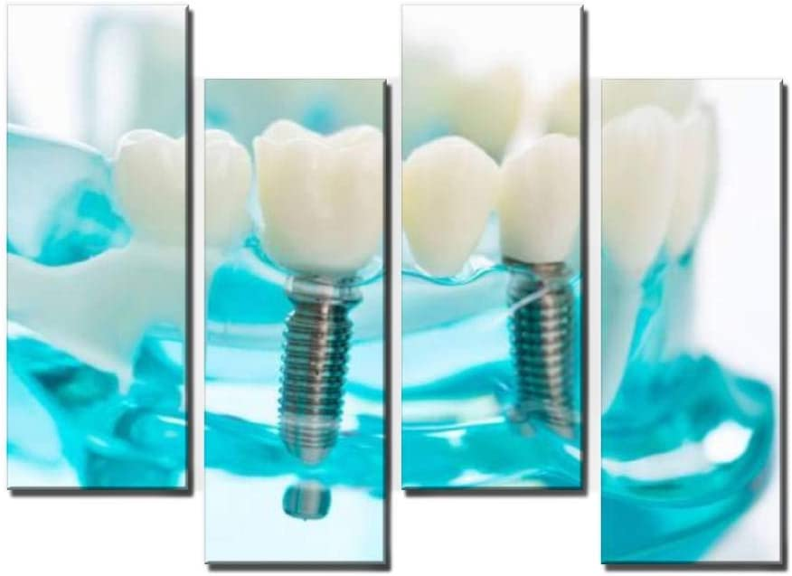 Wocatton Dental Model on White Background dentals and Pictures Wall Art Background Decor Pictures Print On Canvas Art Stretched and Framed Perfect Home Decoration