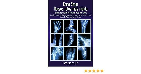 Como Curar Huesos Rotos Más Rápido Consejos Para Curar Fracturas De Huesos Aprenda Sobre Los Alimentos Para La Curación De Fracturas Los Tipos De Fracturas Health And Wellness Nº 2