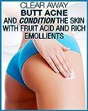 Anti-Acne Buttocks & Thigh Treatment- Clears Away