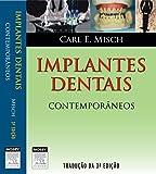 capa de Implantes Dentais Contemporâneos