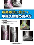 運動療法に役立つ 単純X線像の読み方