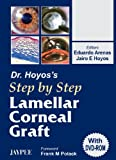 Dr. hoyos' step by step lamellar corneal graft with dvd-rom by Arenas, Arenas, 8180617769