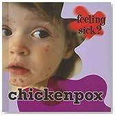 Chickenpox (Feeling Sick?)
