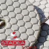 """STADEA 4"""" Dry Diamond Polishing Pads for granite Marble Concrete Stone Granite Tile Polishing Kit - 5 Pcs Pads, 1 Rubber Backer (5/8"""" 11) Set"""