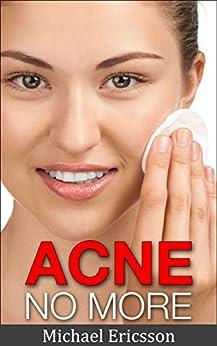 Acne No More Treatment Remedies ebook