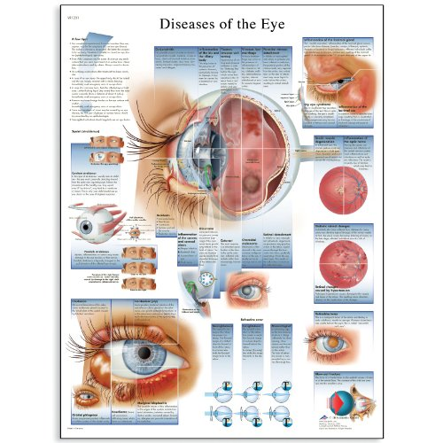 "3B Scientific VR1231L Glossy Laminated Paper Diseases of The Eye Anatomical Chart, Poster Size 20"" Width x 26"" Height"