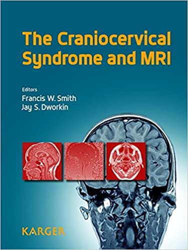 ''UPDATED'' The Craniocervical Syndrome And MRI. contact Sueter nuestros partido cerca viajen speed venga